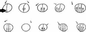 Tipos de pseudocelos. La forma más común se indica con una flecha.