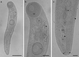 (a–c) Brachylaima Dujardin, 1843 (Trematoda: Brachylaimidae) parasite of Salvator merianae (Duméril and Bibron, 1839) from southern of Brazil. (a) Body of Brachylaima (bar=0.42mm); (b) OS=oral sucker; P=pharynx; A=acetabulum (bar=0.1mm); (c) GP=genital pore; OV=ovary; T=testes; arrow heads indicate the cecum (bar=0.06mm).