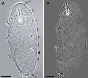 (A) Juvenile in the first stage of life, showing the pattern of 8 bands of pores on its cuticle (scale bar 20μm). Arrows indicate the cluster of pores in the cephalic (anterior to the row 1) and caudal region (posterior to the row 8). (B) Specimen in third life stage showing the pores scattered on the cuticle.