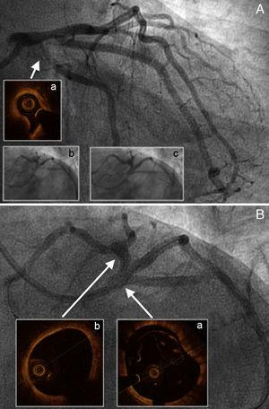 A: Affected medial branch ostium and circumflex artery, with much-diminished circumflex artery lumen caused by compression from the hematoma (a); stent implants at both levels (b and c). B: Final angiogram showing neither compromised lumen and flow in the left coronary artery nor images of dissection in the left main coronary artery (a) or left anterior descending artery (b).