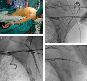A: Position of the patient for the transaxillary approach, with the arm abducted more than 60°. B: Fluoroscopic image of the angiography of the left axillary artery and external radiopaque marker in an attempt to cannulate the artery. C: Fluoroscopic image at the time of artery cannulation. D: Fluoroscopic image with the Prostar XL® at the moment of ensuring that the 4 needles had backed down into the sheath.