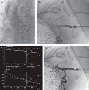 A: Result of the implantation of the CoreValve®. B and D: Residual stenosis after closure of the axillary artery with a single Prostar XL®. C: Degree of stenosis determined by quantitative angiography, which also demonstrates the size of the axillary artery, adequate for the procedure. D, distal; P, proximal.