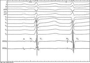 12-lead electrocardiogram with intracardiac tracing with the catheter at the His, showing 2 His- and 2 V-potentials following one A with the same HV interval (AH1, 110ms; H1V1 43ms; AH2 629ms; H2V2 43ms).