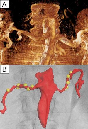 A, Rotational angiography of the abdominal aorta and both main renal arteries of 1 patient. B, fluoroscopic navigation system screenshot showing an anatomical reconstruction based on the fluoroscopic image superimposed on the previous image, as well as the radiofrequency lesions (yellow spheres) created by the catheter, which is located near the ostium of the right renal artery.