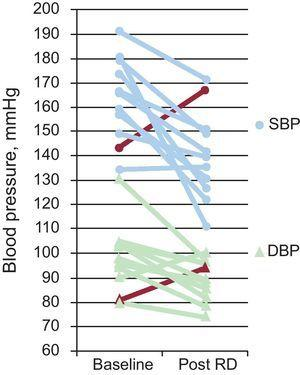 Changes in systolic blood pressure and diastolic blood pressure obtained at baseline and after follow-up in the 11 who underwent renal denervation. DBP, diastolic blood pressure; RD, renal denervation; SBP, systolic blood pressure. The red line indicates the progress of the patient considered to be a nonresponder.