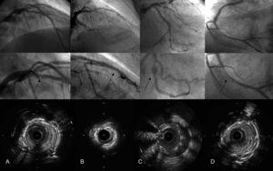 Four main mechanisms of stent thrombosis. The upper row shows the coronary angiographies once distal flow is recovered, the middle row provides a zoomed view of the stent, and the bottom row contains intravascular ultrasound cross-sectional images. A: Intimal flap at the stent border. B: Stent underexpansion. C: Malapposition due to positive vessel remodeling. D: Neointimal proliferation with severe stenosis.