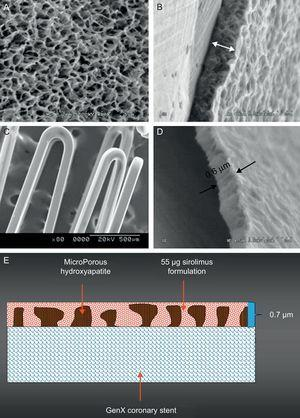 The polymer-free VESTAsync sirolimus-eluting stent system. The scanning electron microscopy images of microporous hydroxyapatite coating (A), cross section of the hydroxyapatite coating (B), final coating including the hydroxyapatite filled with sirolimus formulation (C), and cross section of the final coating (D). A schematic representation of the surface coating (E).