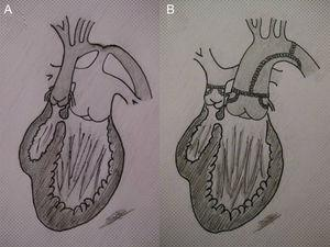 A: left ventricle connected to the pulmonary artery (high flow) and right ventricle (rudimentary) connected to the aorta (single-ventricle physiology with transposition of the great arteries); restrictive ventricular septal defect (subaortic stenosis) and aortic coarctation. B: repaired arch plus palliative switch, connecting the left ventricle with the neoaorta and creating subpulmonary stenosis (pulmonary flow regulated by the restrictive ventricular septal defect).
