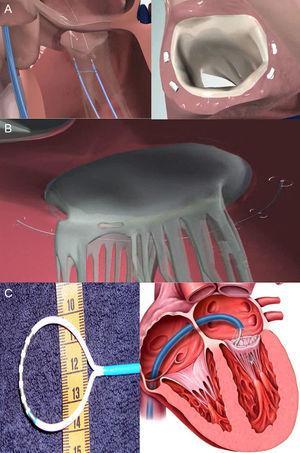 Direct percutaneous annuloplasty devices A: Mitraling. B: Accucinch GDS. C: QuantumCor. Courtesy of Drs. Lutz Buellesfeld (Bern University Hospital, Switzerland) (A) and Richard R. Heuser (St. Luke's Medical Center, University of Arizona, Arizona, United States) (C).