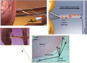 The renal sympathetic denervation procedure is safe and simple, involving femoral artery catheterization with the tip of the catheter placed in the distal renal artery (A). For the target renal artery for ablation, main renal arteries of ≥4mm in diameter and ≥20mm in length are applied. Radiofrequency ablation at the catheter tip is then applied to the vascular wall to provide heat to the external layer and the sympathetic nerves in the adventitia (B). Treatment involves circumferential coverage for 4 to 6 treatments of low-power radiofrequency energy (8 W or less) from the distal point in both renal arteries, lasting ≤120s, and is administered in a spiral manner by manual rotation with approximately 5mm pullback between ablations (A and C). The tip temperature and impedance is monitored in response to a predetermined algorithm during ablation. Reproduced with permission from Medtronic Inc.7