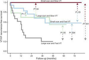 Recurrence-free survival curves according to scar size and ventricular tachycardia cycle length. Dense scar and clinical ventricular tachycardia cycle length are presented as dichotomous variables, using the median value as the cutoff point: large or small scar size (> 25cm2 or ≤ 25cm2) according to the electroanatomic map and slow or fast clinical ventricular tachycardia (≤ 350ms or > 350ms). VF, ventricular fibrillation; VT, ventricular tachycardia. Reproduced with permission of Arenal et al.23