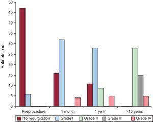 Grade of pulmonary regurgitation before valvuloplasty and at 1 month, 1 year, and 10 years. The number of patients in each grade are shown as absolute values.