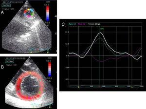 Left ventricular short axis views at apical (A) and basal (B) level with the region of interest at each level. Left ventricular rotation and twist profile curves (C). The white line indicates left ventricular twist. The blue and pink lines indicate apical and basal rotation.