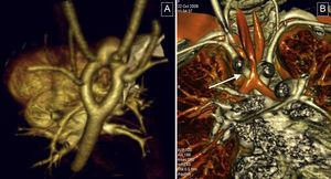 Vascular rings. These were the most common condition in the study. A: three-dimensional volumetric reconstruction, superior-posterior view; complete double aortic arch, with symmetrical arches and isolated origin in supraaortic trunks. B: reconstruction of the airways; reduced tracheal lumen at its passage through the vascular ring (arrow).