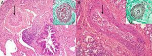 A: Hematoxylin-eosin staining which shows a preacinar artery with cellular hypertrophy of the middle layer and large loss in lumen diameter (arrow). The upper box (Masson trichrome stain) shows another preacinar artery with plexiform changes. B: Hematoxylin-eosin staining of a preacinar artery with intimal thickening (arrow). The upper box (Masson trichrome stain) shows an intraacinar arteriole with muscle hypertrophy.