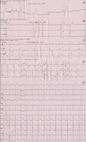 A: First electrocardiogram recorded following consciousness recovery showed complete atrioventricular block and wide QRS escape. B: Intravenous atropine increased sinus rate but did not improve atrioventricular conduction, strongly suggesting an infranodal location of the atrioventricular block. C: Partial atrioventricular conduction recovery 45min after the cardiac arrest. D: Right bundle branch block was observed during the first few minutes following 1:1 atrioventricular conduction recovery. E: Electrocardiogram at hospital admission.
