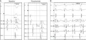 A: Electrophysiologic study performed 3 days after the index admission: slightly prolonged HV interval (56ms) and notched His at baseline, which further prolonged following procainamide challenge. B: Atrial pacing 380ms cycle length following procainamide infusion shows a proximal His bundle deflection (H) with intermittent failure to conduct to the distal His bundle (H') (second paced beat) and split His potentials (third paced beat).