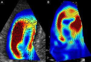 Flow vortices during isovolumetric contraction in a normal individual (A) and a patient with myocardial infarction (B); a loss of flow coherence is seen after infarction, which worsens coupling between the filling and ejection phases. Courtesy of Drs. M. Amaki and P. Sengupta.