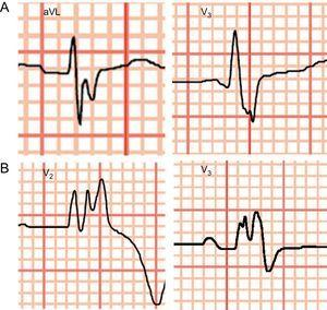 Example of a fragmented surface electrocardiogram. A: Normal intraventricular conduction. B: Intraventricular conduction disturbance in the form of complete right bundle branch block.