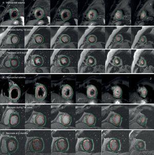 Comparison of cardiac magnetic resonance imaging scans between 2 paradigmatic patients according to PGC-1α induction following myocardial infarction (1: patient with induction; 2: patient without induction): area at risk estimated by myocardial edema in T2-weighted Short Tau Inversion Recovery (T2-STIR) sequences (A), and area of necrosis estimated by late gadolinium enhancement during the first week (B) and at 6 months (C). The areas of necrosis and edema (maroon-colored lines) were calculated with respect to the total myocardial mass by manually tracing the epicardial (green line) and endocardial (red line) outlines.