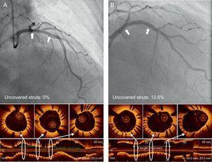 Representative angiography and optical coherence tomography images at 6-month follow-up in optical coherence tomography guidance (A) and angiography guidance (B).