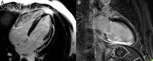 Pattern of lateral and septal subepicardial late enhancement (A) and inferior transmural late enhancement (B) in patients hospitalized for sustained monomorphic ventricular tachycardia. Localization of the fibrosis/necrosis enables planning of the access route for tachycardia ablation treatment.