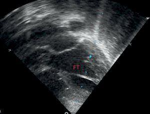 Transthoracic echography in apical plane of 4 chambers, showing left ventricular false tendon in the middle third of the left ventricle. FT, left ventricular false tendon.