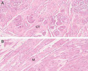 Hematoxylin-eosin stain of left ventricular false tendon at × 10 (A) and × 20 (B) that shows a predominance of muscle tissue, although connective tissue is also observed. CT, connective tissue; M, muscular.