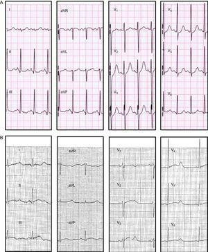 Twelve-lead electrocardiogram of some KCNH2-H562R carriers. A: patient V.1 (QTc 480ms). B: patient IV.12 (QTc, 600 ms). Both reported several episodes of syncope at rest.