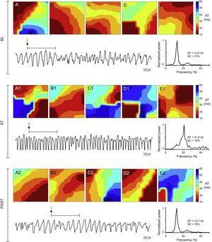 Activation maps, ventricular fibrillation recording obtained with 1 of the electrodes, and power spectrum of the signal recorded in the stretch zone immediately before stretch, during stretch, and poststretch in a control experiment. During stretch ventricular fibrillation accelerates, the dominant frequency increases, and more complex activation maps (type III) predominate. AT, activation time; BL, baseline; DF, dominant frequency; POST, poststretch; SC, spectral concentration; ST, stretch.