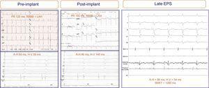 Electrograms and electrocardiograms of a patient with no electrocardiographic abnormalities recorded after prosthesis implantation (bifascicular block was maintained), although significant changes are present in the intracardiac electrogram: H-V interval prolongation (from 58 ms to 140ms). Repeat electrophysiologic study 7 days after implantation showed full normalization of the intracardiac intervals. ADA, anterior descending artery; EPS, electrophysiologic study; LAH, left atrial hemiblock; RBBB, right bundle branch block-bundle of His; RV; right ventricle; SNRT, sinus node recovery time.