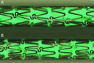 Stent design of the conventional cobalt chromium Architect®, the metallic control platform, drug-eluting stent 1 and drug-eluting stent 2 (A); the new metallic structural platform of the drug-eluting stent 3 has more crowns per segment and unlinked connectors to provide more uniform elution (B). High definition images using the QSix® system (Barcelona, Spain).