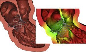 A 3D computer-aided design model of a transcatheter mitral valve device is imported to Mimics© and positioned within the patients reconstructed anatomy.
