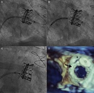 Para-ring leak closure. A: Sheath advance through the leak, into the left ventricle. B: Advance of the 14/5 Amplatzer vascular plug III device. C: Vascular plug implant. D: Final echocardiographic result (SAPIEN XT valve, arrow. Vascular plug, asterisk).