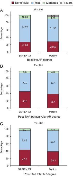 Baseline (A), paravalvular (B), and global (C) aortic regurgitation after transcatheter aortic valve implantation, according to the valve type (SAPIEN XT or Portico valve). AR, aortic regurgitation; TAVI, transcatheter aortic valve implantation.