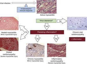Pathogenesis of viral and inflammatory cardiomyopathy.