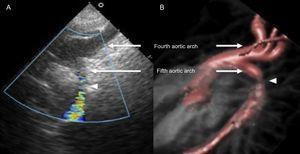 Double-lumen aortic arch imaged by 2-dimensional echocardiography (A) and cardicac magnetic resonance imaging (B). The superior tranverse arch (fourth aortic arch) includes openings to the major neck vessels. The inferior transverse arch (persistent fifth aortic arch) has an aortic coarctation (arrowhead).