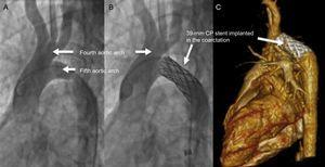 Catheter angiography of the ascending aorta before and after implantation of a 39-mm CP stent at the coarctation site (A y B). Post-intervention computed tomography with contrast (C).