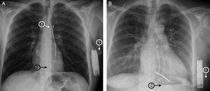 Chest X-rays showing automatic subcutaneous implantable cardioverter-defibrillators implanted by the 3-incision method (A) and the 2-incision method (B).