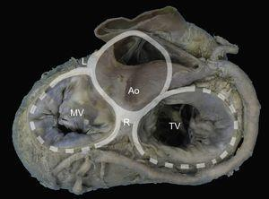 Mitral annulus. Macroscopic view of the base of the heart showing the mitral annulus in relation with the fibrous skeleton (denoted in grey by the aortic and tricuspid annuli) through the right and left fibrous trigones and the aortomitral junction, between the fibrous trigones. Ao, aorta; L, left fibrous trigone; MV, mitral valve; R, right fibrous trigone; TV, tricuspid valve.