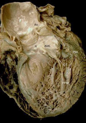 Mitral valve apparatus. Macroscopic view of a long axis slice of the heart through the anterior wall and aortic valve, without the anterior papillary muscle and its chordae tendineae. Note the relation between the anatomic structures and mitral apparatus anchoring to the ventricle via the papillary muscles. Note also how the chordae tendineae insert into the rough zone of the anterior leaflet ventricular surface and extend toward the aorta through the aortomitral junction, with the right and left fibrous trigones on either side. AML, anterior mitral leaflet; Ao, aorta; CT, chordae tendineae; L, left fibrous trigone; PML, posterior mitral leaflet; PPM, posterior papillary muscle; R, right fibrous trigone.