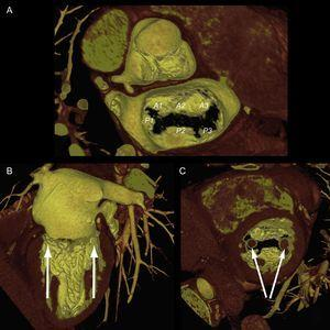 Mitral valve apparatus on cardiac computed tomography. Volume-rendered 3-dimensional reconstruction showing a mitral valve from a surgical view and leaflet scallops identified according to the Carpentier classification (A). Longitudinal (B) and transversal (C) views of the ventricle show the papillary muscles aligned toward the commissural zones.