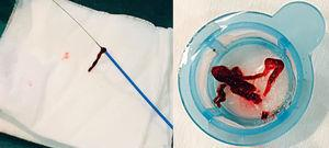 Thrombus removed from a coronary artery with a manual aspiration catheter during primary percutaneous coronary intervention.