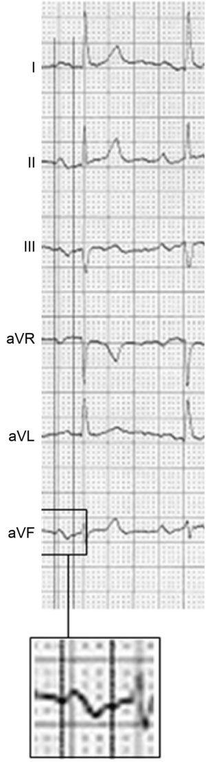 Electrocardiogram showing advanced interatrial block: P wave ≥ 120ms plus a ± pattern in the II, III, and aVF leads.