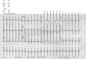 Twelve-lead surface electrocardiogram showing signs of right atrial and right ventricular enlargement with strain pattern related to right ventricular pressure overload due to pulmonary hypertension. HR, heart rate.