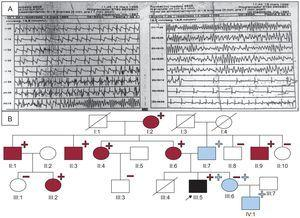 A: Recording of the polymorphic tachycardia in the proband. B: Family tree./, deceased; –, noncarriers, lacking the L3778F mutation in RyR2 (blue) or the E449R*14 mutation in KCNQ1 (red); +, carriers, heterozygous for L3778F in RyR2 (blue) or E449R*14 in KCNQ1 (red); circles, women; boxes, men; arrow, proband; blue fill, patient with CPVT (according to the European and US consensus statement)3; black fill, patient clinically affected by LQTS1 and CPVT; red fill, patient with LQTS1; RyR2, ryanodine receptor gene; LQTS1, type 1 long QT syndrome; CPVT, catecholaminergic polymorphic ventricular tachycardia.