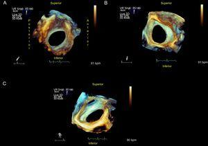 Ostium secundum atrial septal defect. A: View from the right atrium; device rims and spatial relationship with neighboring structures can be measured. B: From left atrium. C: Rotating the image, the connection from the right superior pulmonary vein to the left atrium can be observed. AO, aorta; SVC, superior vena cava; RSPV, right superior pulmonary vein.