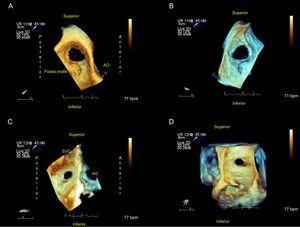 Ostium secundum atrial septal defect in the upper septum. A:View from right atrium. B:From left atrium. C:A small central defect can be observed from the right atrium. D: From the left atrium. AO, aorta; SVC, superior vena cava.