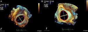 Oval-shaped atrial septal defect. Measurements of major and minor diameters and area from right (A) and left side (B).