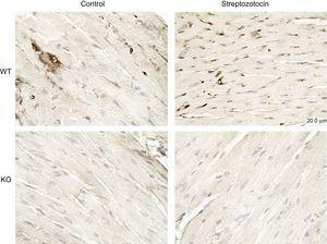 PI3Kγ expression is increased in diabetic mice. Representative microscopic images of histological preparations of left ventricles from control and diabetic mice. PI3Kγ KO mice were used as negative control. Magnification, ÿ200; scale bar, 100μm; n = 4 per group. KO, knock-out; PI3Kγ, phosphoinositide3-kinase gamma; WT, wild-type.